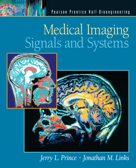 Solution Manual for Medical Imaging Signals and Systems Jerry L. Prince, Jonathan Links